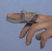 dedo machacado